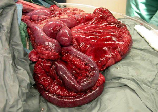Do's and don'ts bij chirurgie van het maagdarmkanaal