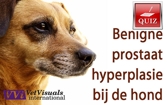 Benigne Prostaat Hyperplasie