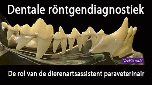 dentale rontgen gebit