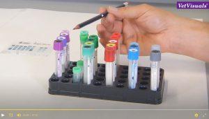 kleurcodering van bloedbuisjes